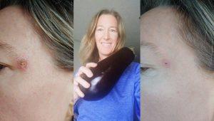 healing skin cancer naturally