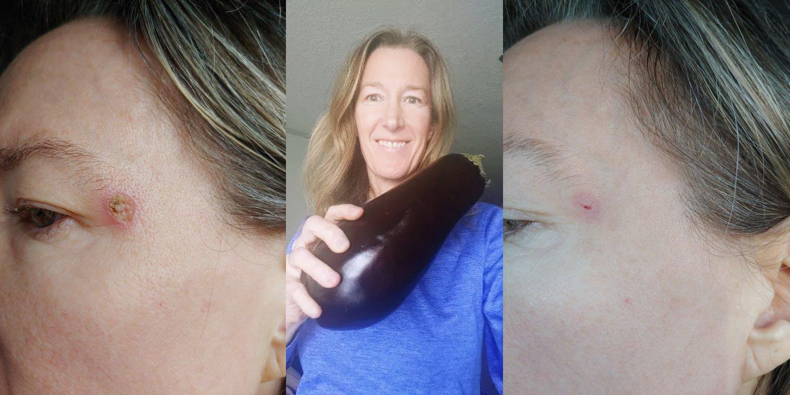 Healing Skin Cancer With Eggplant Vinegar And Kangen Water Best Spiritual Retreats And Wellness Vacation Packages Taowander